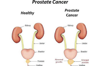 http://urologistmumbai.com/prostate-cancer-treatments.html
