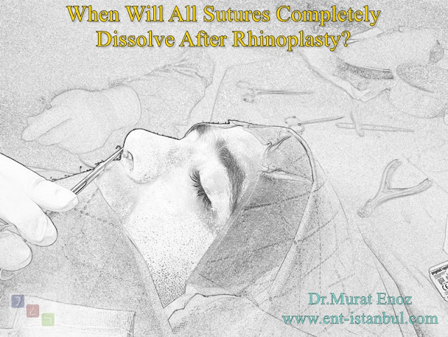 The Time For Rhinoplasty Stitches To Dissolve