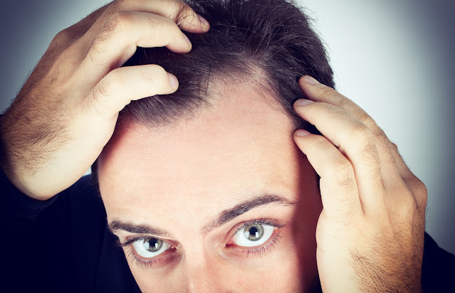 The solution to hair loss