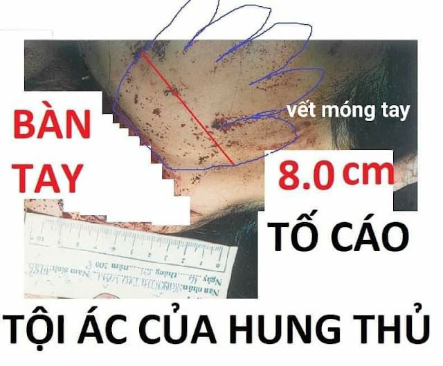 Bàn tay tố cáo tội ác của hung thủ vụ án tử tù Hồ Duy Hải