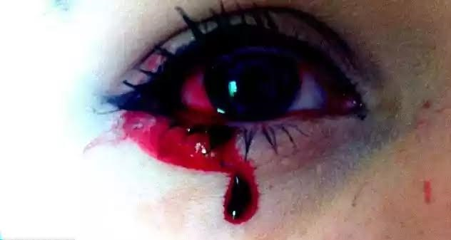 See Disturbing Photos of a 17-Year Old Girl Who Bleeds From Her Eyes, Nose, Ears, Scalp & Tongue