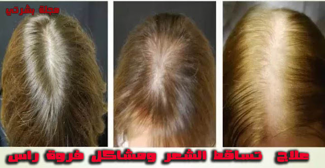 علاج التهاب فروة الراس وتساقط الشعر