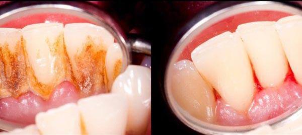 3 краплі - і зубний наліт зникне за один раз