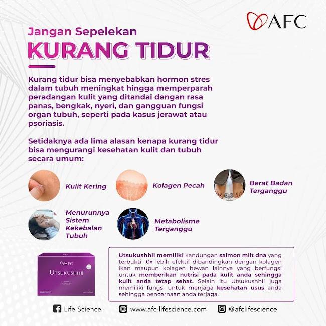 Agen Jual: Suplemen SOP 100+, SOP Subarashi AFC Japan, di Kazakhstan