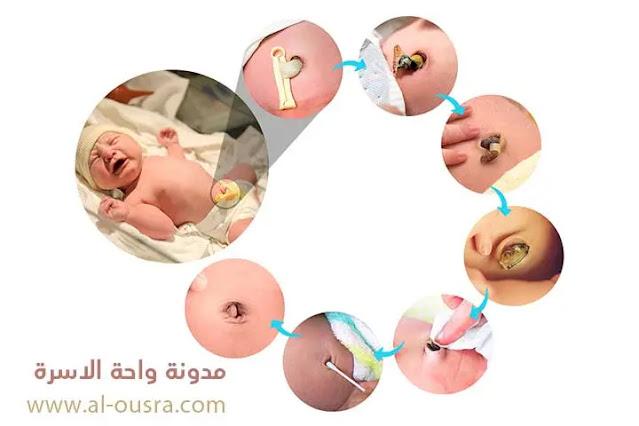 مراحل سقوط سرة الطفل بالصور