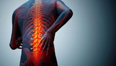 Obat Nyeri Tulang Belakang