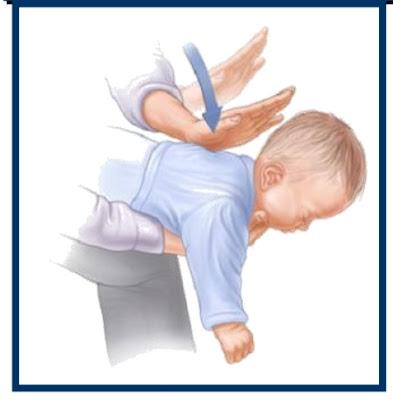 إسعافات اوليه لابتلاع طفلك جسم غريب