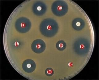 boğaz kültürü antibiyogram