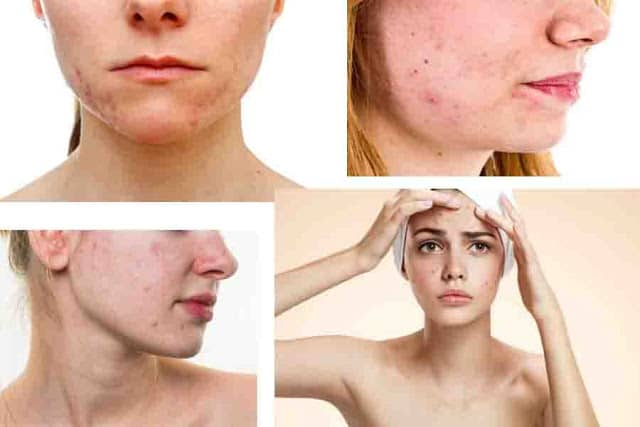 How to Remove Dark Spots on Face Fast