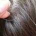"""Phương pháp điều trị tóc bạc sớm dễ như """"trở bàn tay"""""""
