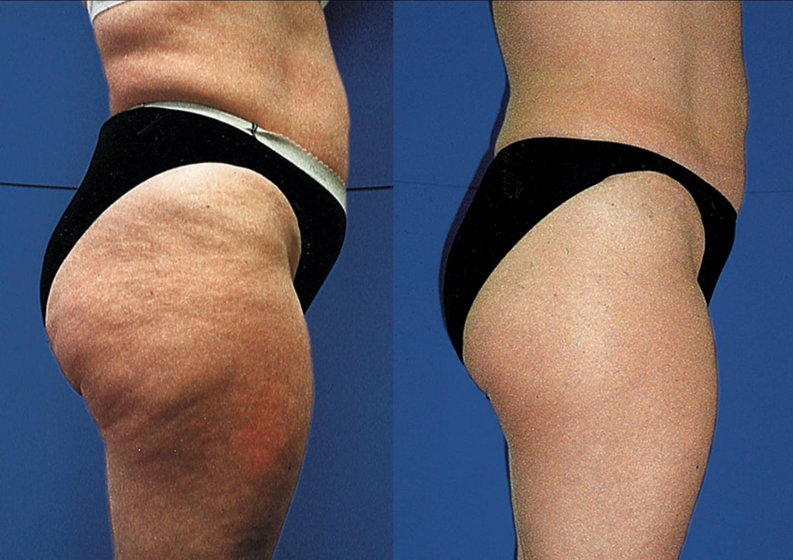 gommage anti cellulite fait maison