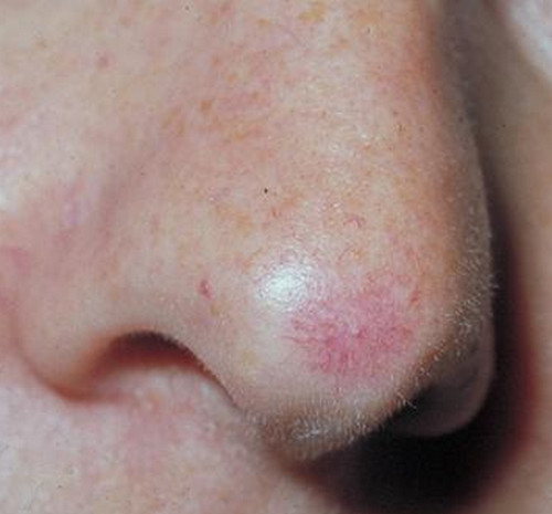 spider angioma - causes, pictures and treatment (removal, Skeleton