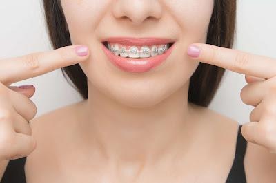 Leczenie zębów u dentysty mając aparat na zeby jest możliwe