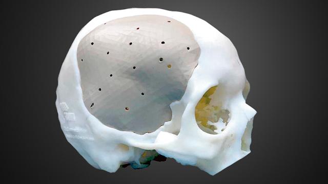 Emprendedores mexicanos reconstruyen cráneos con impresión 3D