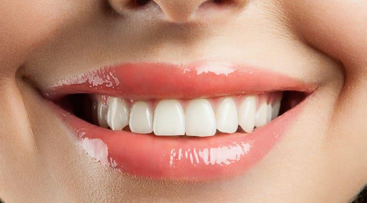 Kết quả hình ảnh cho khiến răng sứ thẩm mỹ trở thành lựa chọn tuyệt vời