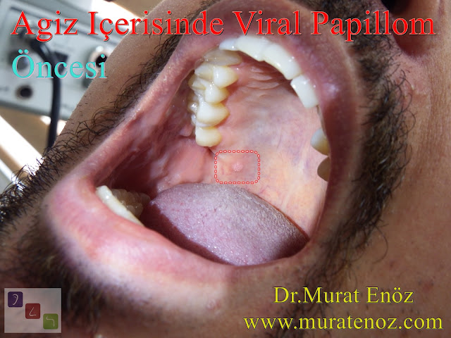 Oral Human Papillomavirus (HPV) Infection - Symptoms, Diagnosis