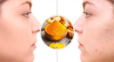 curcuma pour éliminer les cicatrices d'acné