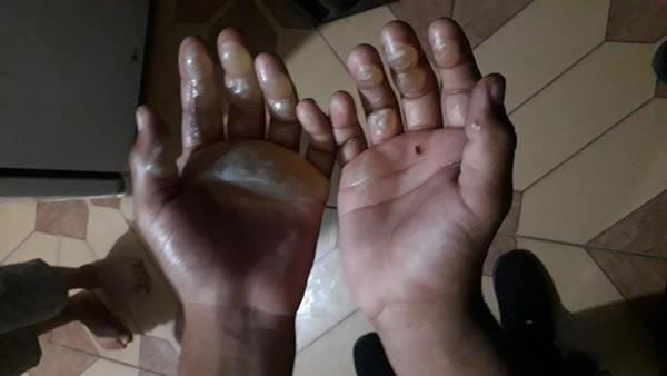 Crueldade: Mãe queima mãos de criança com ferro de passar
