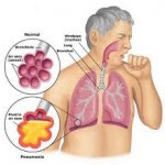 Ciri ciri penyakit paru paru