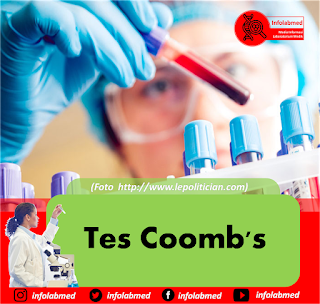 Tes Coomb's
