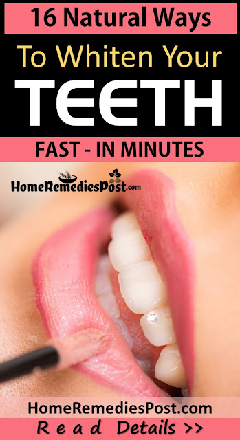Teeth Whitening, Yellow Teeth, How To Get Rid Of Yellow Teeth, Home Remedies For Teeth Whitening, Home Remedies For Yellow Teeth, Fast Teeth Whitening, Teeth Whitening Treatment, Teeth Whitening Home Remedies, How To Treat Yellow Teeth, How To Cure Yellow Teeth, Teeth Whitening Remedies, Remedies For Teeth Whitening, Treatment For Teeth Whitening, Best Teeth Whitening Treatment, How To Get Rid Of Yellow Teeth Fast, Yellowness in Teeth