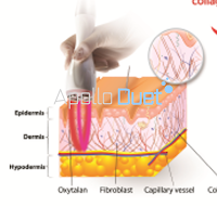 Radio Frequency Apollo duet Bipolar RF skin, anti aging,  neck wrinkle care, Aesthetic RF,