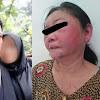 Gak Terima Dipergoki Sedang Selingkuh, Pria Ini Aniaya Istrinya Hingga Babak Belur