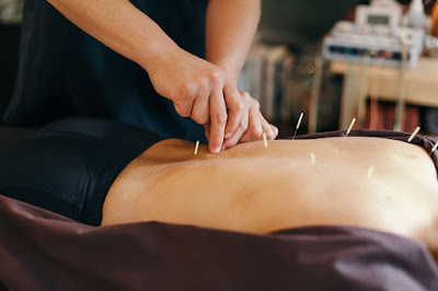 Acupuncture Improves Relief of Chronic Prostatitis and Pelvic Pain Syndrome, Study Reveals