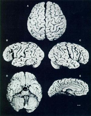 Foto Otak Albert Einstein