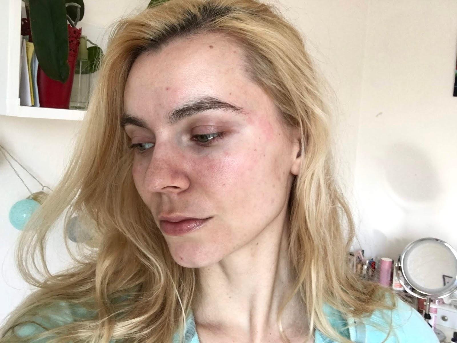 zničená ochranná bariera kože
