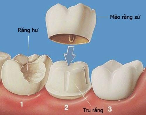 (Kỹ thuật bọc răng sứ thẩm mỹ)