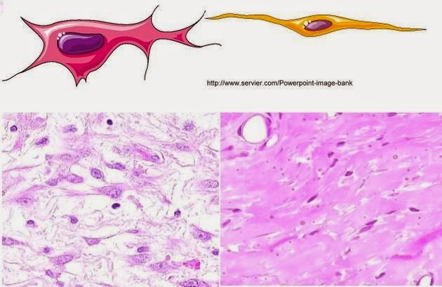 fibroblaste et fibrocyte