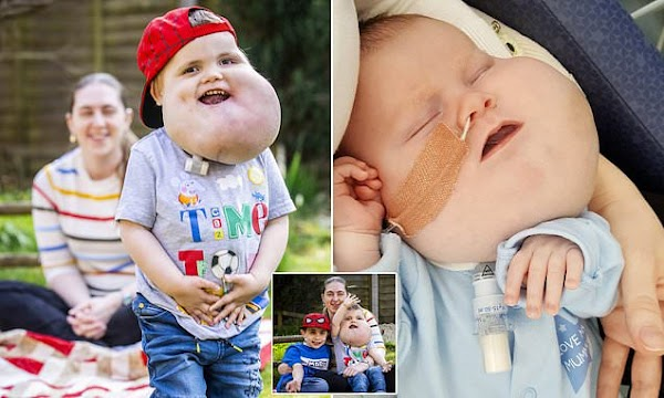 Brave boy, 4 , with cysts the size of a grapefruit on his face walks for first time