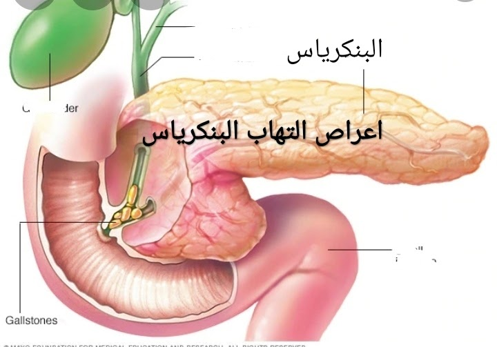 طرق علاج قرحة عنق الرحم بالأعشاب الموسوعة