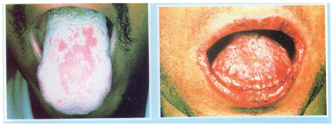 Hãy cảnh giác, vì bệnh về miệng rất dễ xảy ra