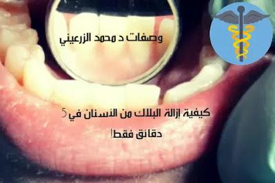 كيفية ازالة الجير من الأسنان في 5 دقائق فقط!