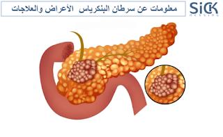 معلومات عن سرطان البنكرياس  الأعراض والعلاجات