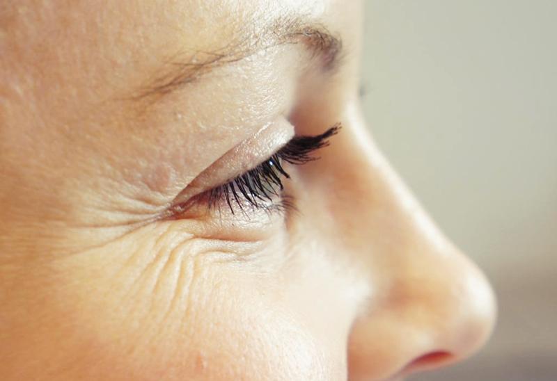 Sağlıklı göz çevresi için koruyucu kullanın