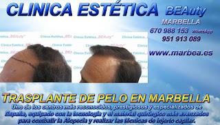 implante PELO MARBELLA Clínica Estética  trasplante pelo para mujeres  or para hombres o en Marbella y Málaga: Te ofrecemos la mayor calidad de nuestroservicio con los mejores
