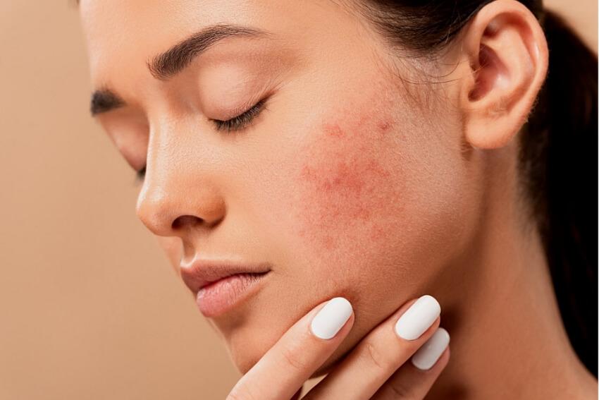 Pele com acne, mulher rosto vermelho