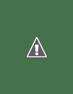 Fotografía de un bebe con el síndrome de pierre-robin