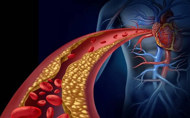 8 Remédios Homeopáticos Efetivos para Arteriosclerose
