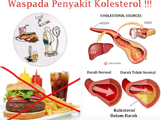 Jual Suplemen Khusus Untuk Penderita Kolesterol
