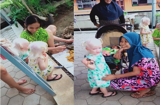 Bocah Kembar Albino Wonogiri - FBRidwan