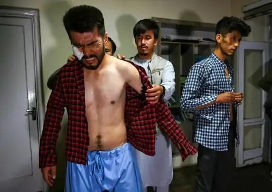 तालिबान लड़ाकों ने पत्रकारों को निर्वस्त्र कर चाबुक और बिजली के तारों से पीटा, चेहरे को जमीन पर रगड़ा