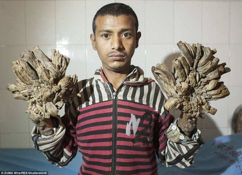 """Tree man"" undergoes 16 surgeries. See his new photos"