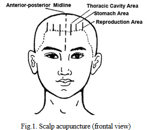 図:しゃっくりに効く頭部のツボ