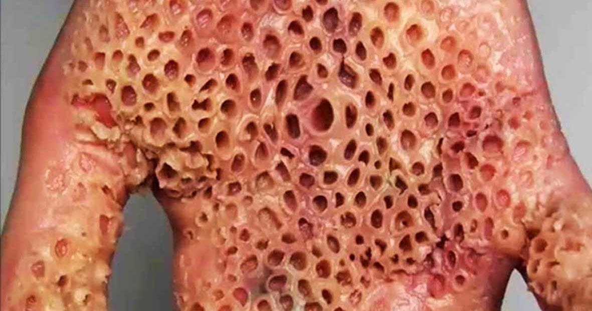 Trypophobia Holes On Human