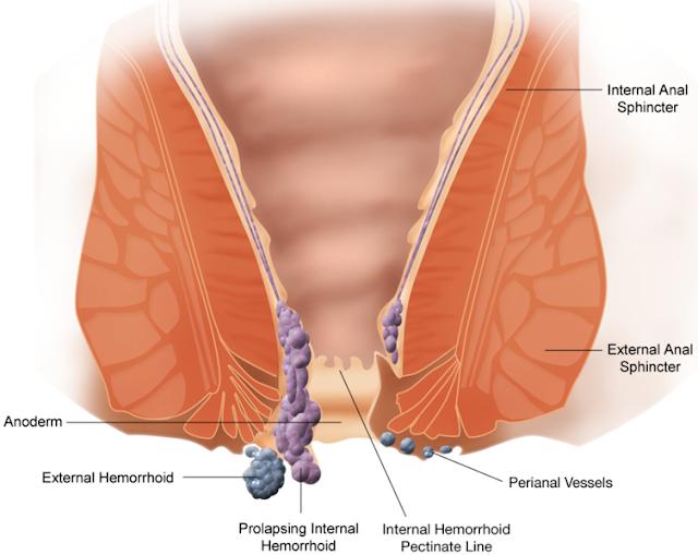 Thrombosed external hemorrhoid treatment that works on it.