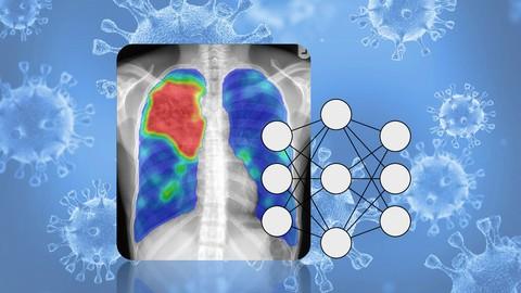 Deep Learning aplicado: Diagnóstico de Covid-19 en Rayos X